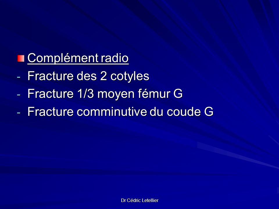 Dr Cédric Letellier Complément radio - Fracture des 2 cotyles - Fracture 1/3 moyen fémur G - Fracture comminutive du coude G
