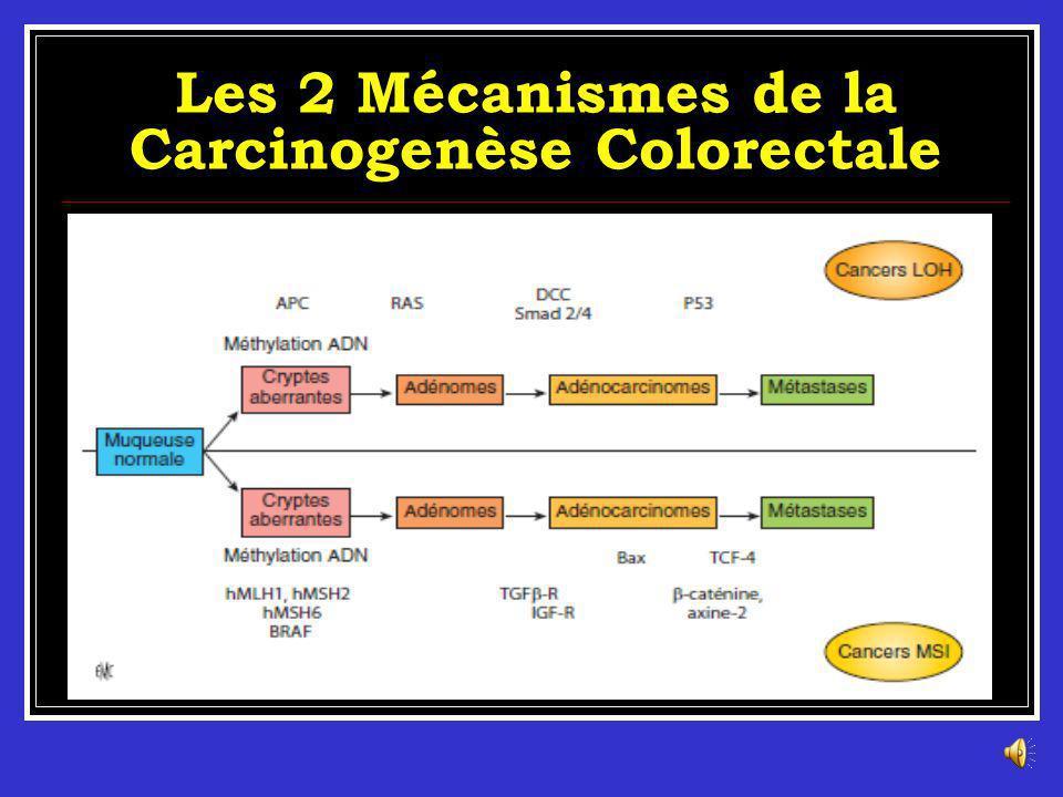 Carcinogenèse colorectale Vogelstein et al, ont proposé en 1990 un modèle de développement des cancers colorectaux sporadiques en plusieurs étapes. Il