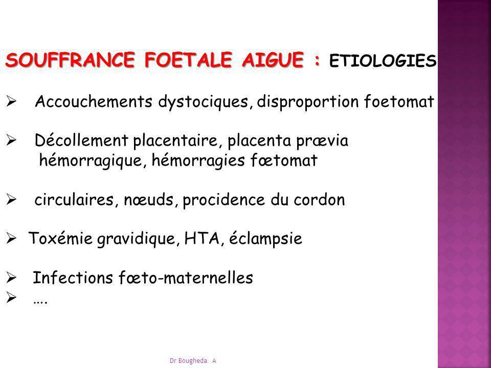 SOUFFRANCE FOETALE AIGUE : SOUFFRANCE FOETALE AIGUE : ETIOLOGIES Accouchements dystociques, disproportion foetomat Décollement placentaire, placenta p