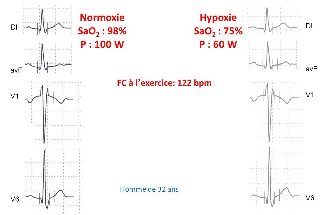 FC à lexercice: 122 bpm Normoxie SaO 2 : 98% P : 100 W Hypoxie SaO 2 : 75% P : 60 W DI avF V1 V6 DI avF V1 V6 Homme de 32 ans