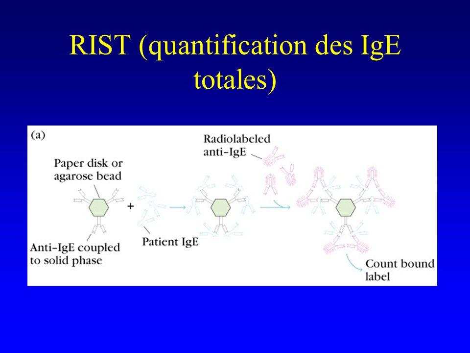 RIST (quantification des IgE totales)