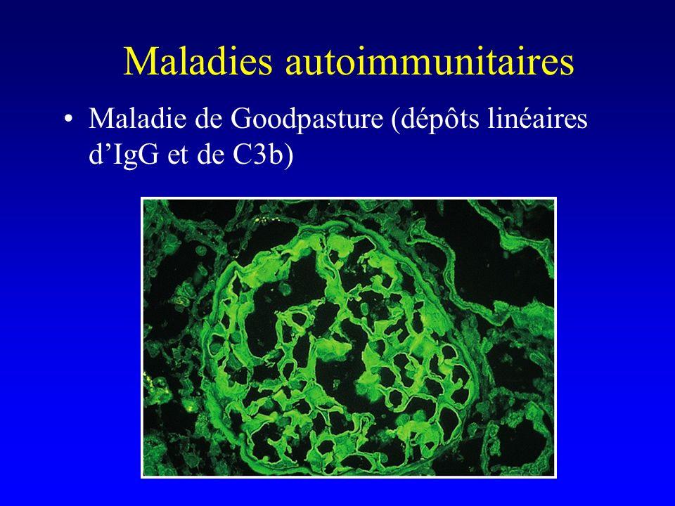 Maladies autoimmunitaires Maladie de Goodpasture (dépôts linéaires dIgG et de C3b)