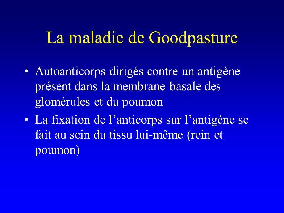 La maladie de Goodpasture Autoanticorps dirigés contre un antigène présent dans la membrane basale des glomérules et du poumon La fixation de lanticorps sur lantigène se fait au sein du tissu lui-même (rein et poumon)