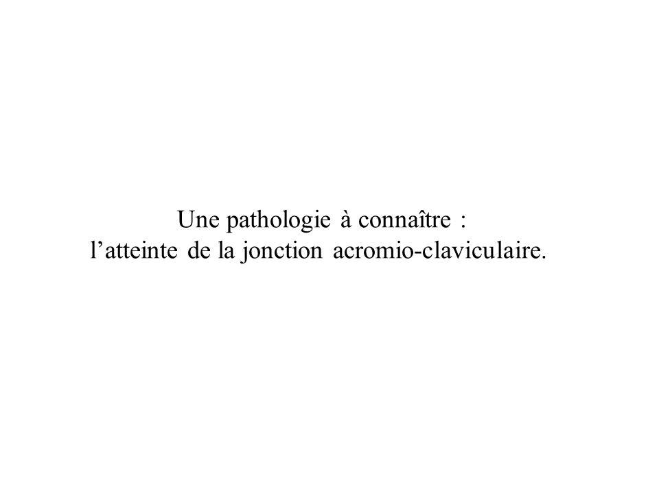 Une pathologie à connaître : latteinte de la jonction acromio-claviculaire.
