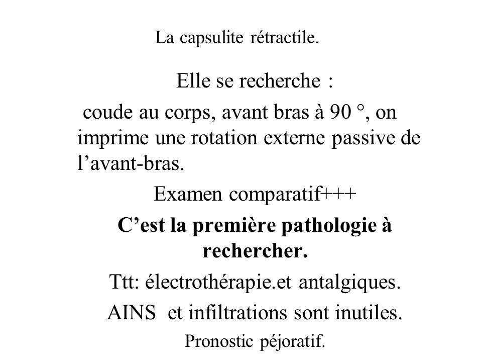 La capsulite rétractile. Elle se recherche : coude au corps, avant bras à 90 °, on imprime une rotation externe passive de lavant-bras. Examen compara