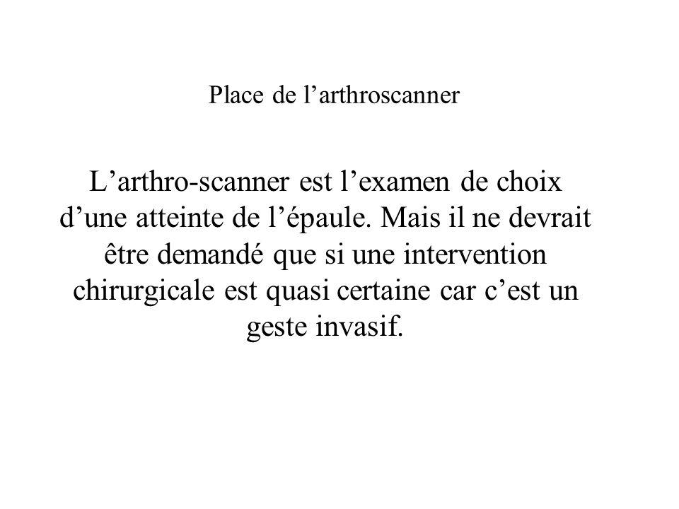 Place de larthroscanner Larthro-scanner est lexamen de choix dune atteinte de lépaule. Mais il ne devrait être demandé que si une intervention chirurg
