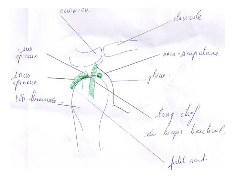 La tendinite du sous-scapulaire.Elle se recherche coude au corps, avant bras à 90°.