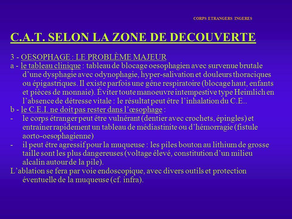 CORPS ETRANGERS INGERES C.A.T. SELON LA ZONE DE DECOUVERTE 3 - OESOPHAGE : LE PROBLÈME MAJEUR a - le tableau clinique : tableau de blocage oesophagien