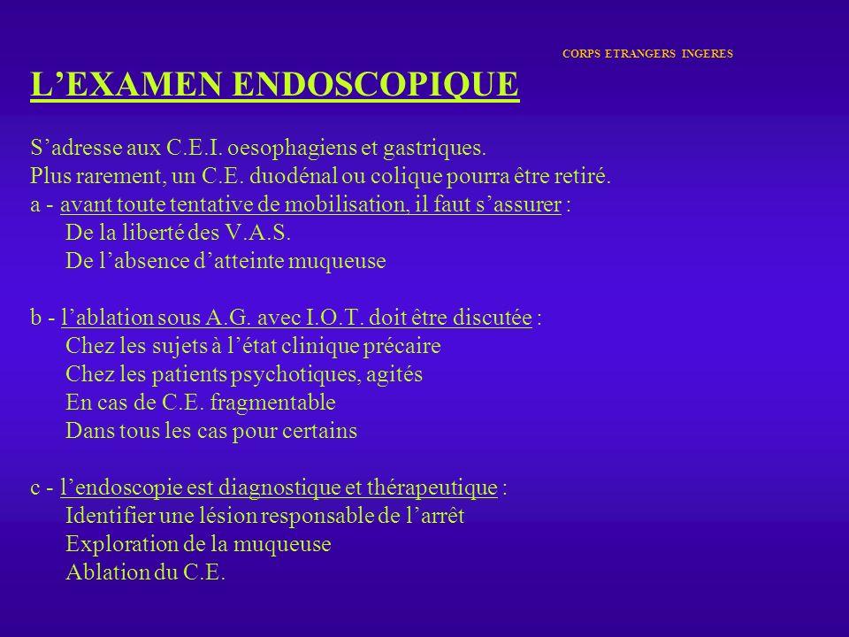 CORPS ETRANGERS INGERES LEXAMEN ENDOSCOPIQUE Sadresse aux C.E.I. oesophagiens et gastriques. Plus rarement, un C.E. duodénal ou colique pourra être re
