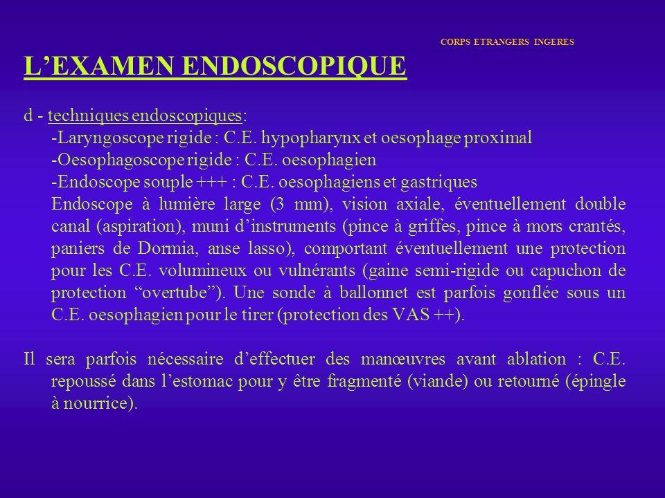 CORPS ETRANGERS INGERES LEXAMEN ENDOSCOPIQUE d - techniques endoscopiques: -Laryngoscope rigide : C.E. hypopharynx et oesophage proximal -Oesophagosco