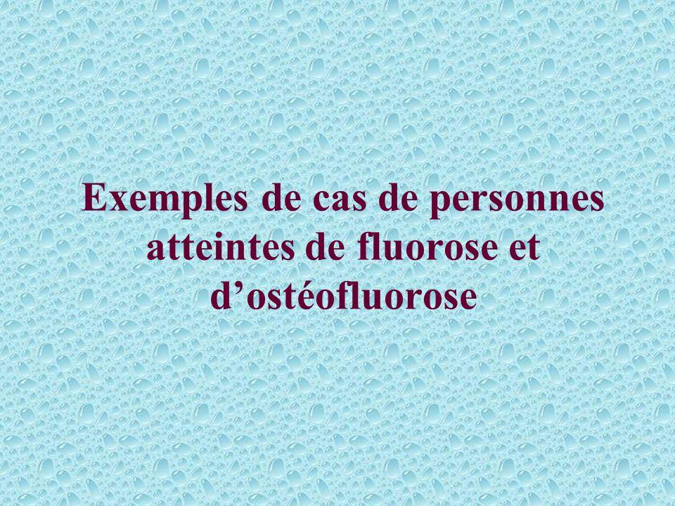 La fluorose (suite) Une concentration supérieure à 5mg/l, peut provoquer la perte des dents et provoquer la fluorose osseuse caractérisée par une hype