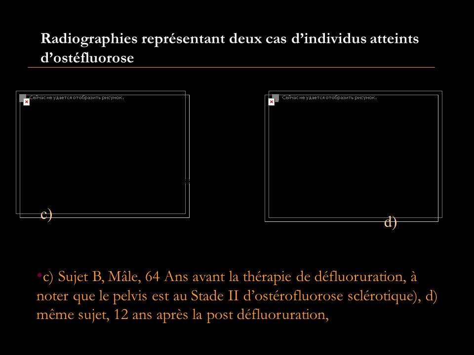 a)b) a)Sujet A Mâle ; âge 63 ans, avant la thérapie de défluoration, pathologie Ostéfluorose, stade II). b) Même sujet 12 ans plus tard, état ; retour