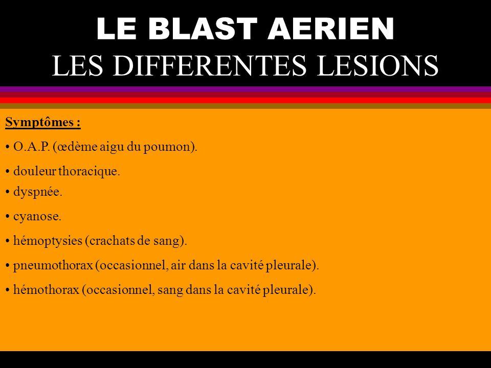 LE BLAST AERIEN LES DIFFERENTES LESIONS O.A.P. (œdème aigu du poumon). douleur thoracique. dyspnée. cyanose. hémoptysies (crachats de sang). pneumotho