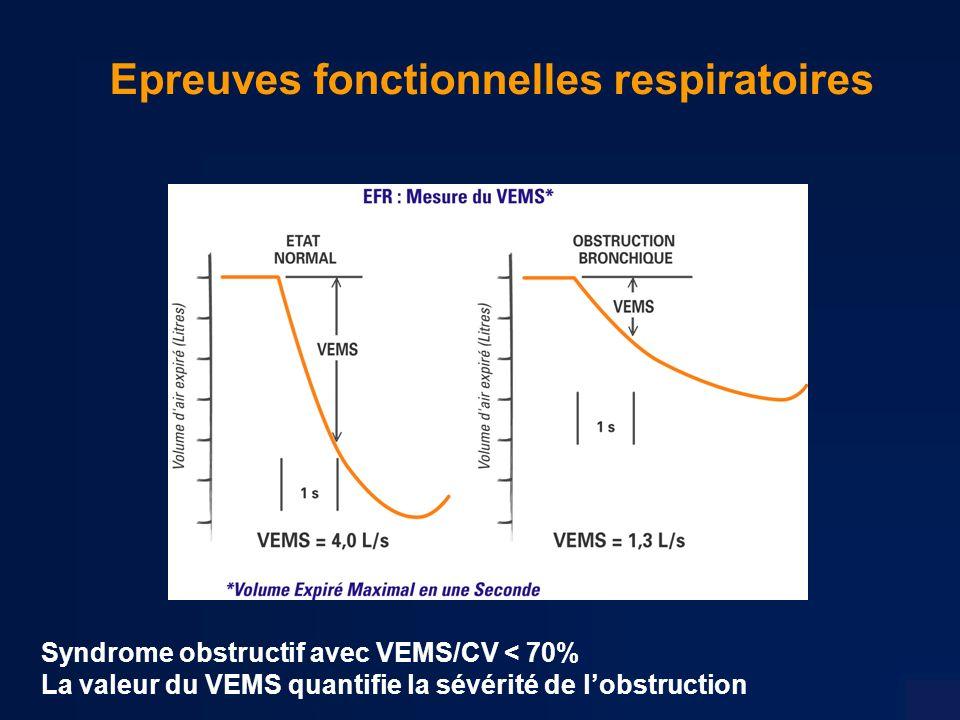 Epreuves fonctionnelles respiratoires Syndrome obstructif avec VEMS/CV < 70% La valeur du VEMS quantifie la sévérité de lobstruction