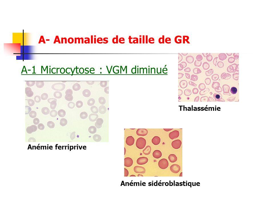 A-1 Microcytose : VGM diminué A- Anomalies de taille de GR Anémie ferriprive Thalassémie Anémie sidéroblastique