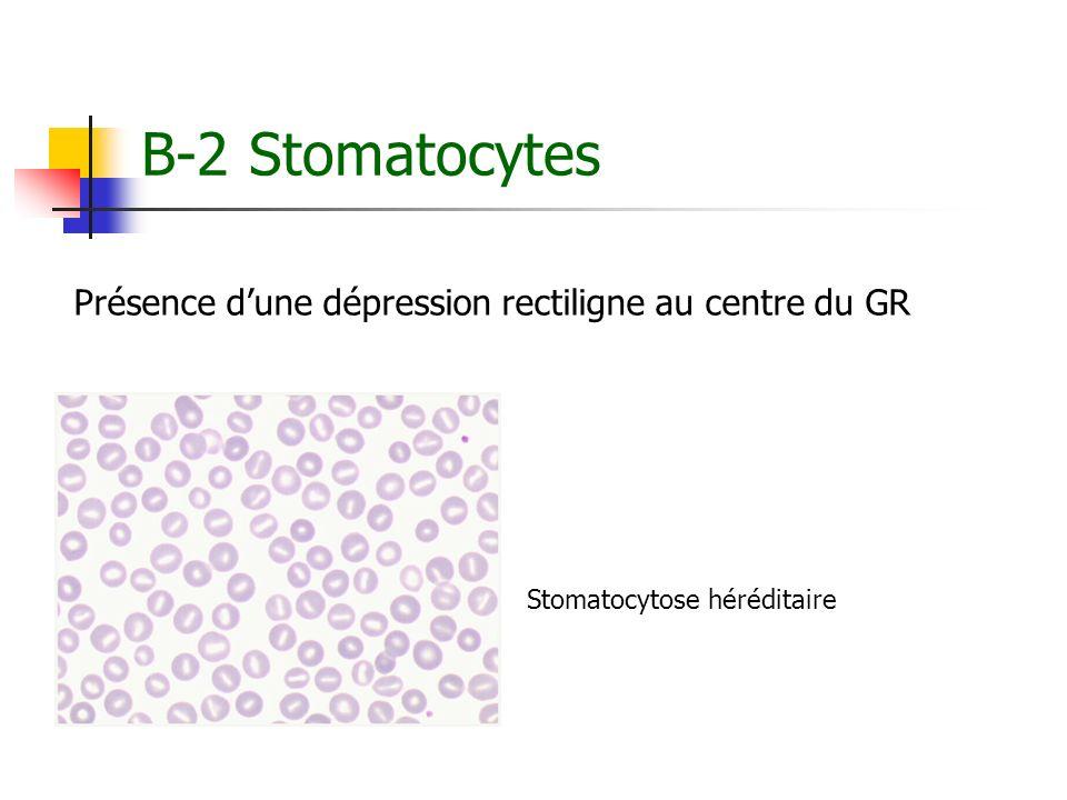 B-2 Stomatocytes Présence dune dépression rectiligne au centre du GR Stomatocytose héréditaire