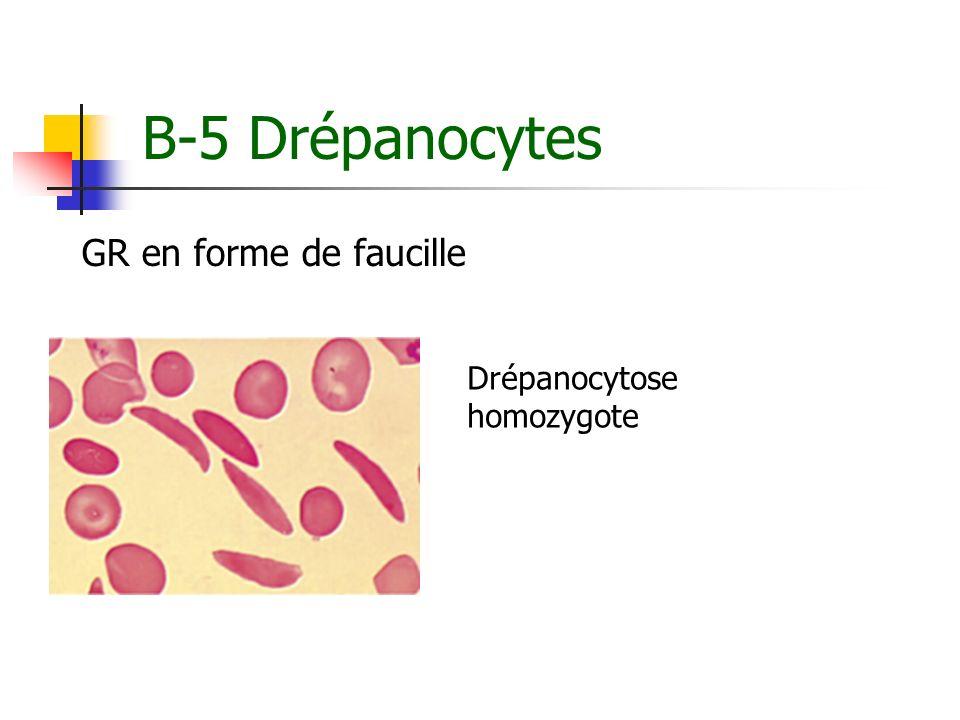 B-5 Drépanocytes GR en forme de faucille Drépanocytose homozygote