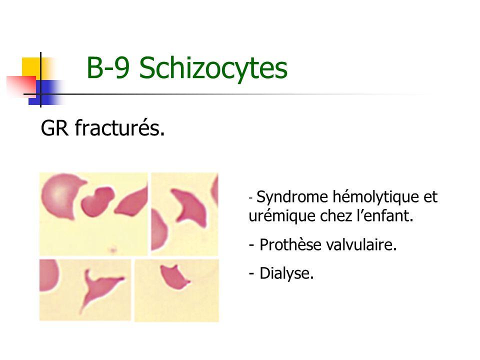B-9 Schizocytes GR fracturés. - Syndrome hémolytique et urémique chez lenfant. - Prothèse valvulaire. - Dialyse.