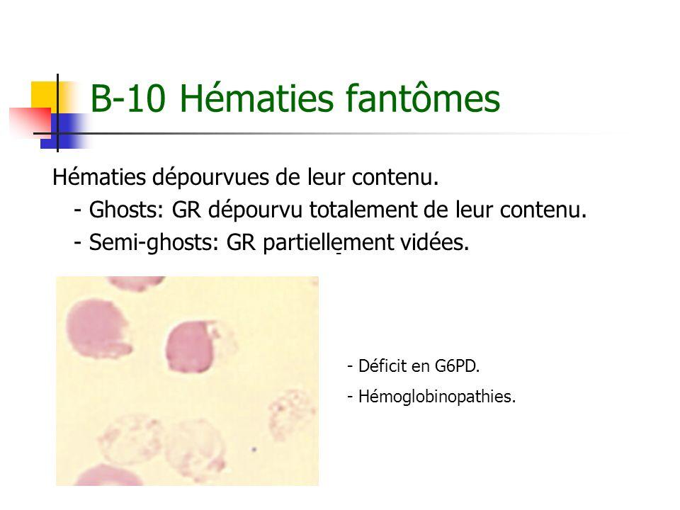 B-10 Hématies fantômes Hématies dépourvues de leur contenu. - Ghosts: GR dépourvu totalement de leur contenu. - Semi-ghosts: GR partiellement vidées.