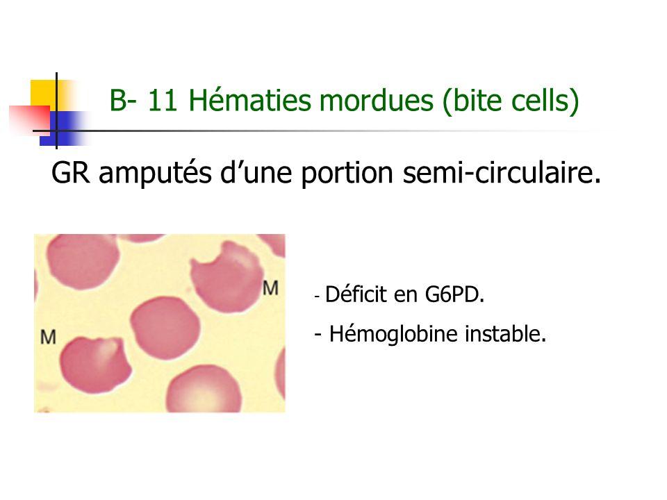 B- 11 Hématies mordues (bite cells) GR amputés dune portion semi-circulaire. - Déficit en G6PD. - Hémoglobine instable.