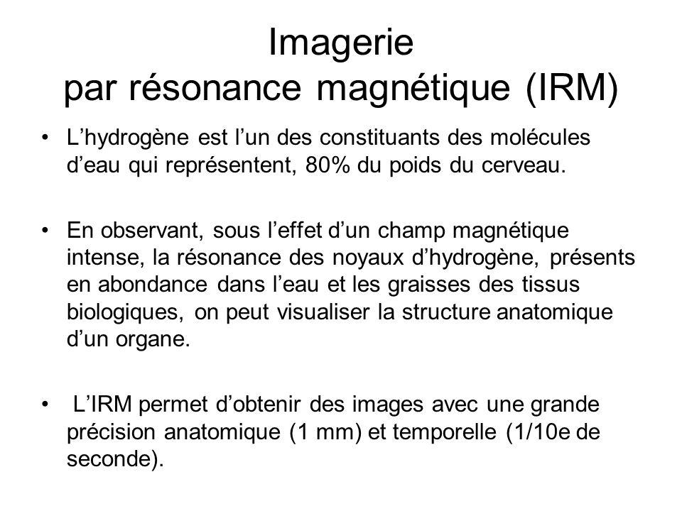 Imagerie par résonance magnétique (IRM) Lhydrogène est lun des constituants des molécules deau qui représentent, 80% du poids du cerveau. En observant