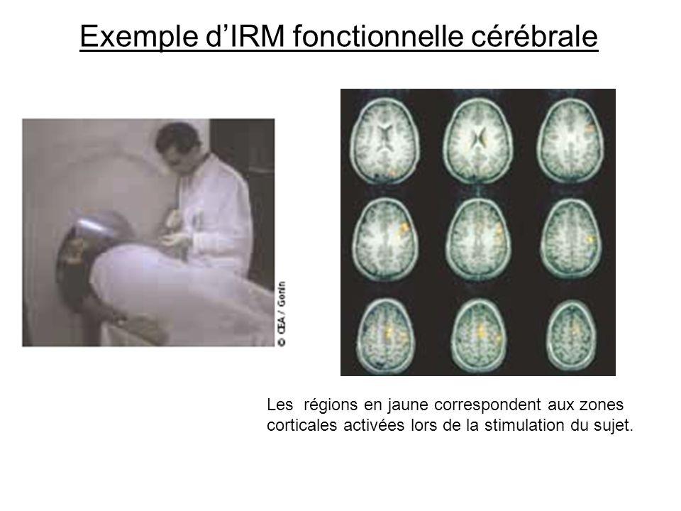 Les régions en jaune correspondent aux zones corticales activées lors de la stimulation du sujet. Exemple dIRM fonctionnelle cérébrale