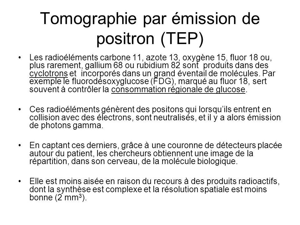 Tomographie par émission de positron (TEP) Les radioéléments carbone 11, azote 13, oxygène 15, fluor 18 ou, plus rarement, gallium 68 ou rubidium 82 s
