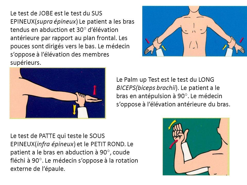 Le test de JOBE est le test du SUS EPINEUX(supra épineux) Le patient a les bras tendus en abduction et 30° délévation antérieure par rapport au plan f