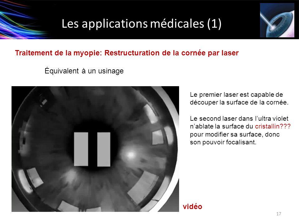Les applications médicales (1) Traitement de la myopie: Restructuration de la cornée par laser Équivalent à un usinage 17 Le premier laser est capable
