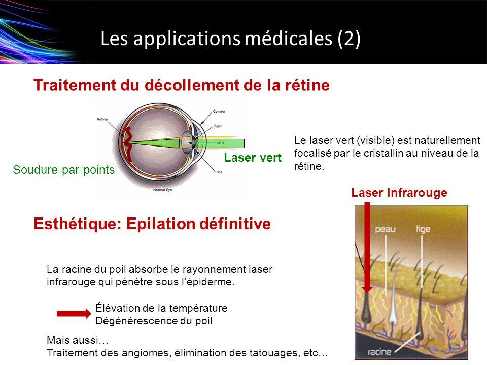 Esthétique: Epilation définitive Les applications médicales (2) Traitement du décollement de la rétine La racine du poil absorbe le rayonnement laser