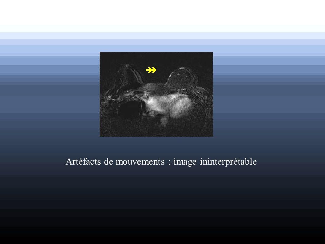 Artéfacts de mouvements : image ininterprétable