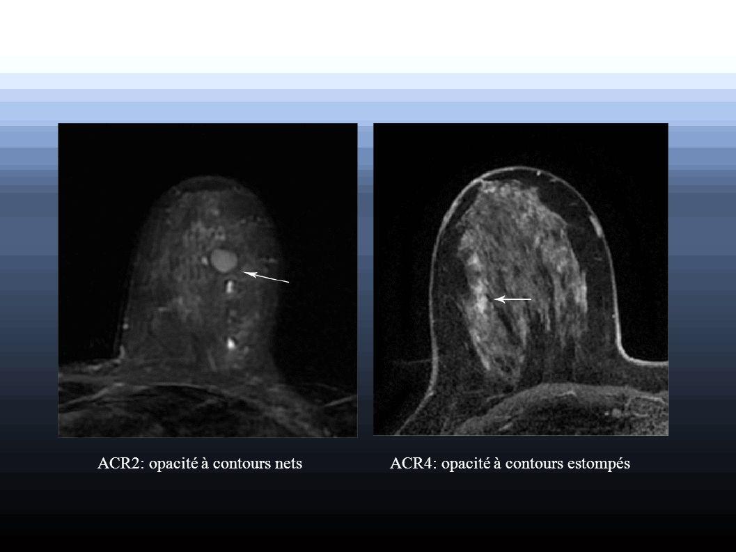 ACR2: opacité à contours netsACR4: opacité à contours estompés