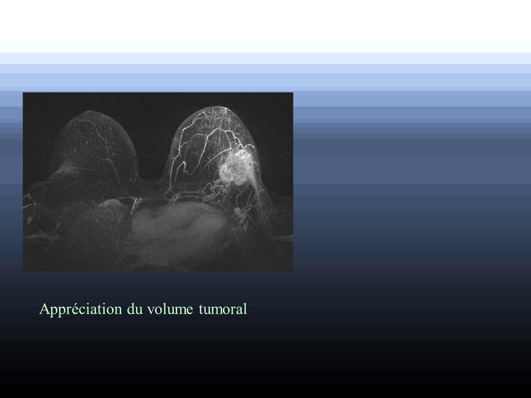 Appréciation du volume tumoral