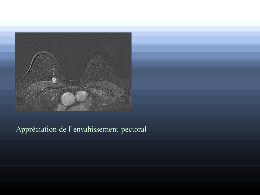 Appréciation de lenvahissement pectoral