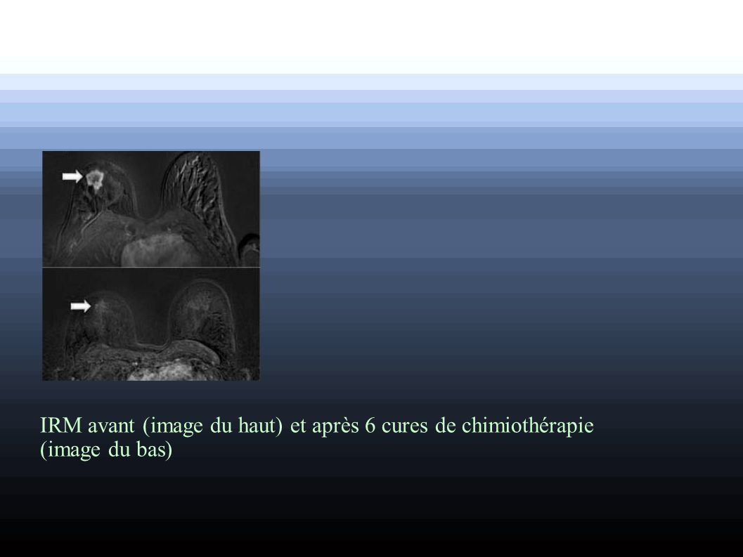 IRM avant (image du haut) et après 6 cures de chimiothérapie (image du bas)