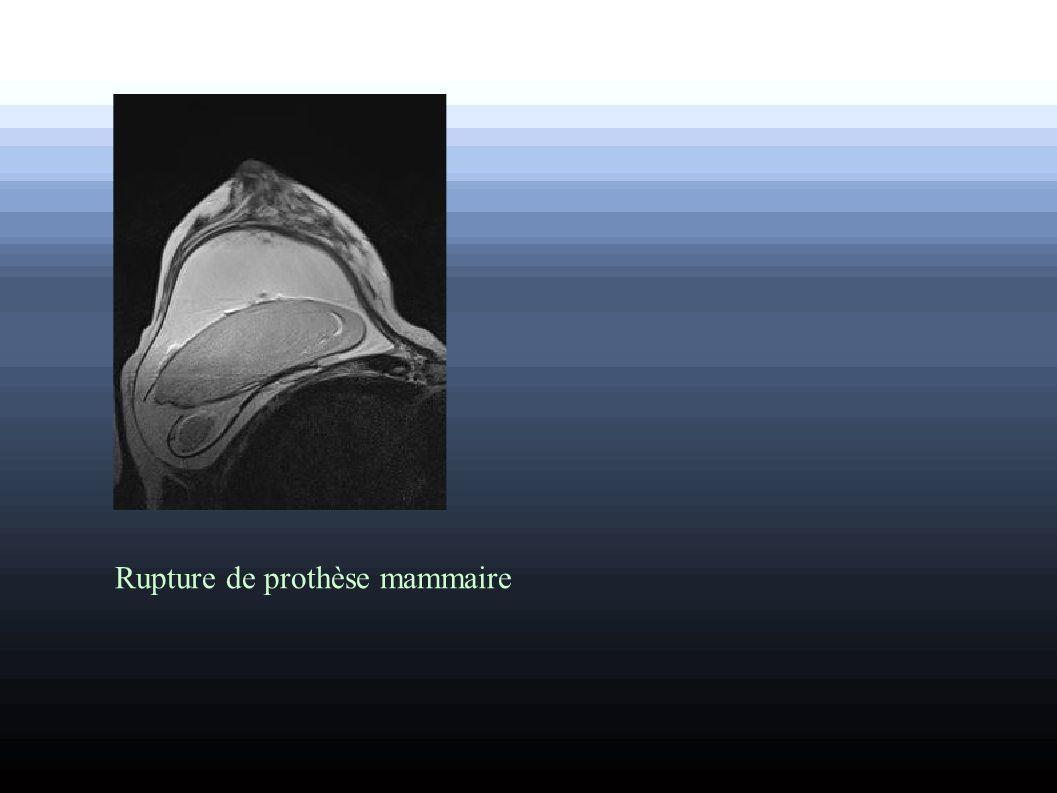 Rupture de prothèse mammaire