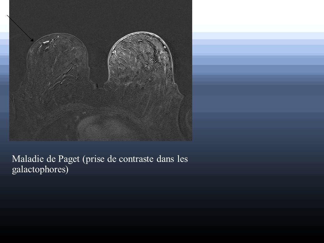 Maladie de Paget (prise de contraste dans les galactophores)