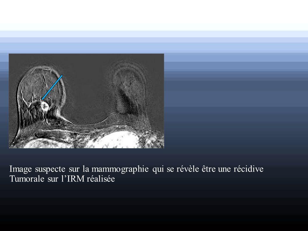 Image suspecte sur la mammographie qui se révèle être une récidive Tumorale sur lIRM réalisée