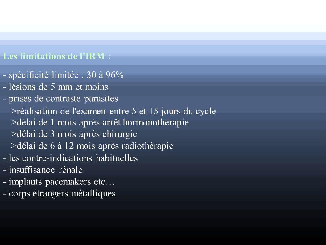Les limitations de l'IRM : - spécificité limitée : 30 à 96% - lésions de 5 mm et moins - prises de contraste parasites >réalisation de l'examen entre
