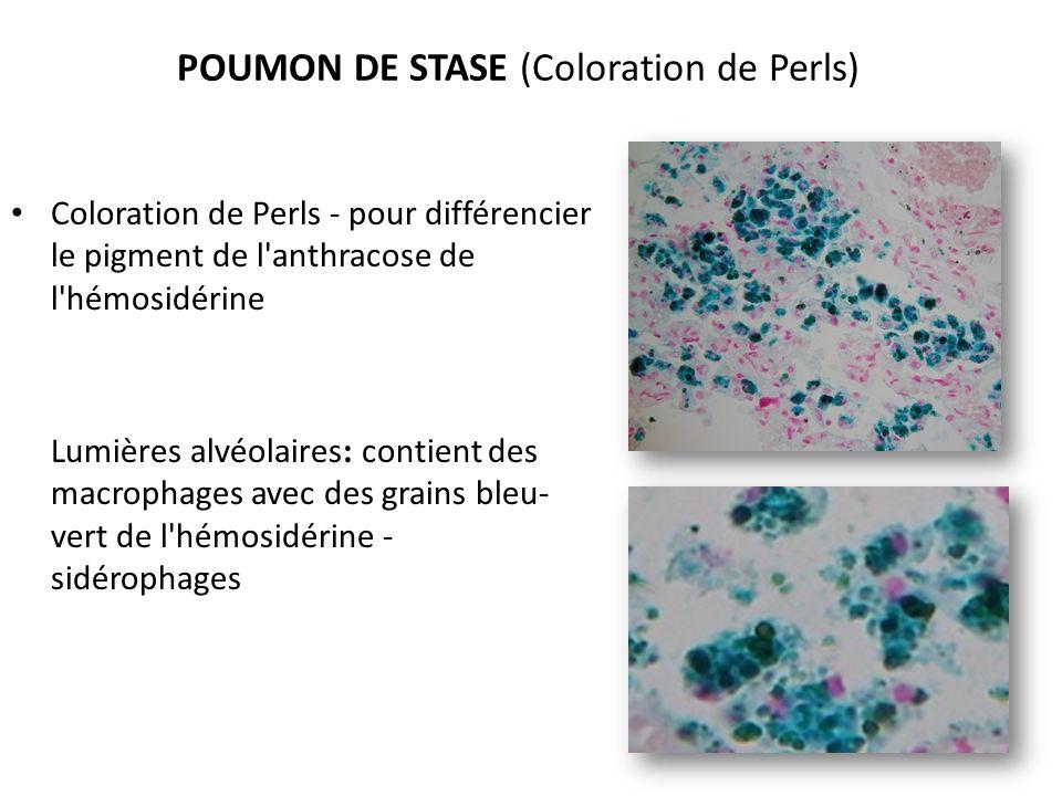 POUMON DE STASE (Coloration de Perls) Coloration de Perls - pour différencier le pigment de l anthracose de l hémosidérine Lumières alvéolaires: contient des macrophages avec des grains bleu- vert de l hémosidérine - sidérophages
