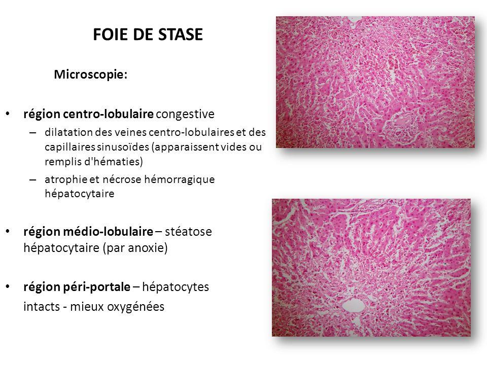 FOIE DE STASE Microscopie: région centro-lobulaire congestive – dilatation des veines centro-lobulaires et des capillaires sinusoïdes (apparaissent vides ou remplis d hématies) – atrophie et nécrose hémorragique hépatocytaire région médio-lobulaire – stéatose hépatocytaire (par anoxie) région péri-portale – hépatocytes intacts - mieux oxygénées