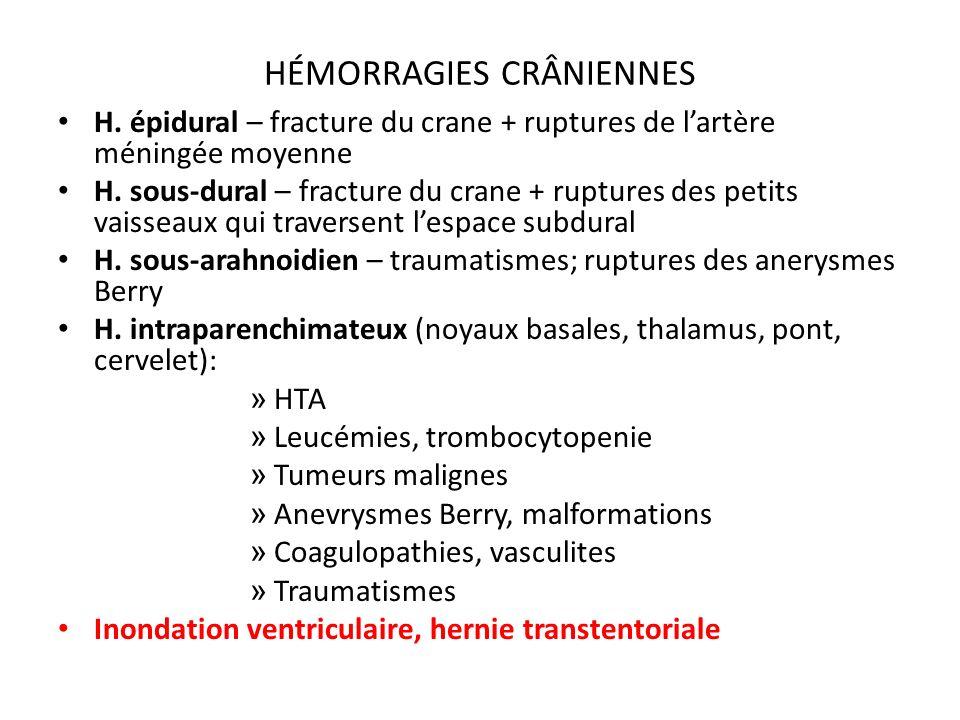 HÉMORRAGIES CRÂNIENNES H.épidural – fracture du crane + ruptures de lartère méningée moyenne H.
