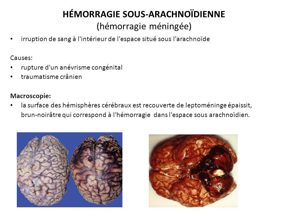 HÉMORRAGIE SOUS-ARACHNOÏDIENNE (hémorragie méningée) irruption de sang à l intérieur de l espace situé sous l arachnoïde Causes: rupture d un anévrisme congénital traumatisme crânien Macroscopie: la surface des hémisphères cérébraux est recouverte de leptoméninge épaissit, brun-noirâtre qui correspond à l hémorragie dans l espace sous arachnoïdien.