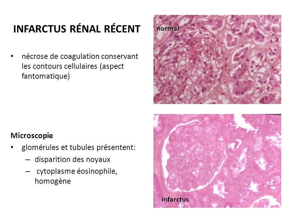 INFARCTUS RÉNAL RÉCENT nécrose de coagulation conservant les contours cellulaires (aspect fantomatique) Microscopie glomérules et tubules présentent: – disparition des noyaux – cytoplasme éosinophile, homogène infarctus normal