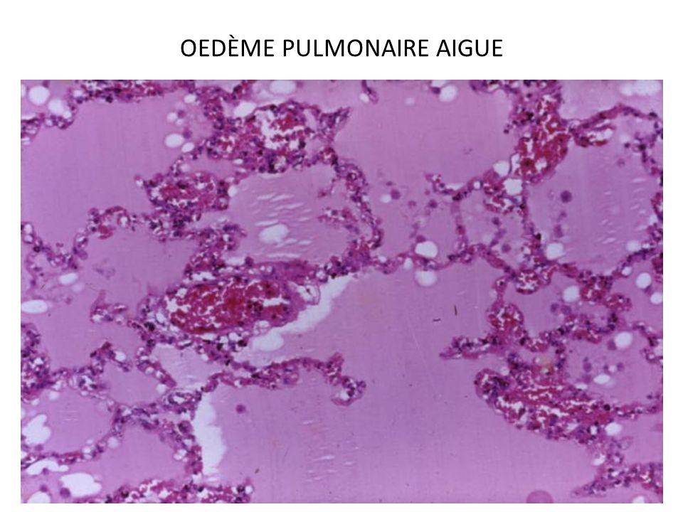 ISCHÉMIE Définition : arrêt ou diminution de lapport vasculaire dans unterritoire donné de l organisme Cette diminution entraîne essentiellement une baisse de l oxygénation des tissus de l organe en dessous de ses besoins Ischémie peut être aiguë et chronique Ischémie aiguë (infarctus) par oblitération complète et brutale de la circulation dans un organ Ischémie chronique perfusion artériel dun tissu (ou organe) diminué par rapport à ses besoins métaboliques conduit à une atrophie de type ischémique