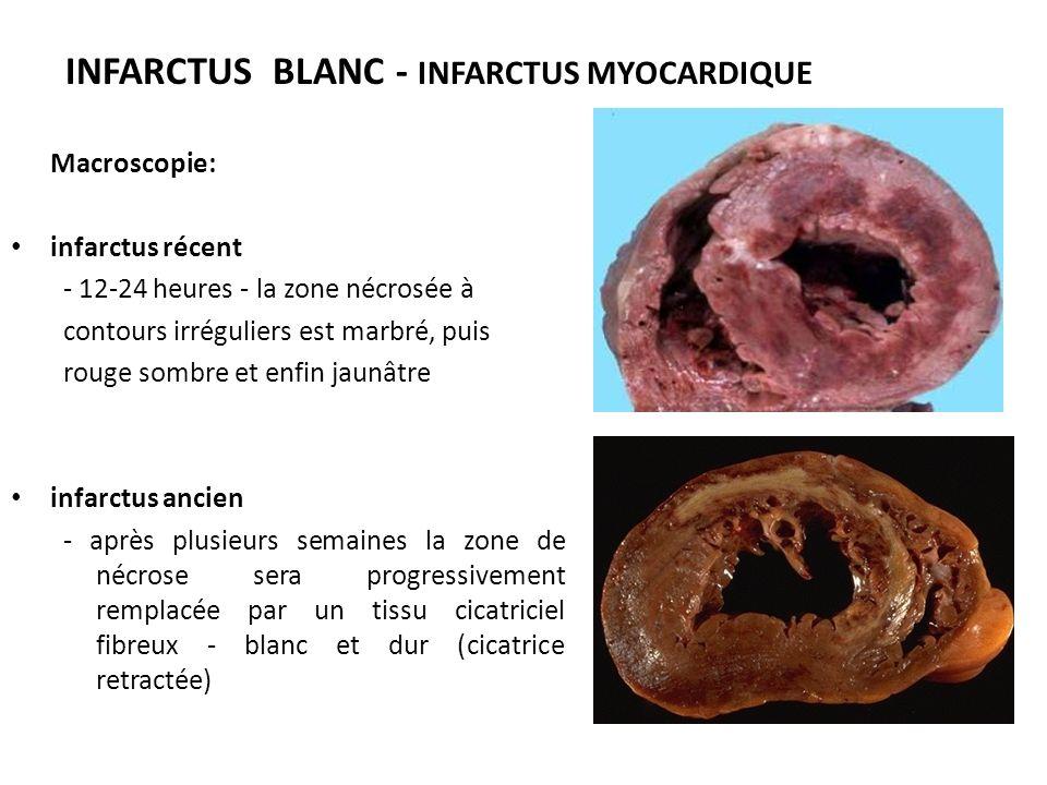 INFARCTUS BLANC - INFARCTUS MYOCARDIQUE Macroscopie: infarctus récent - 12-24 heures - la zone nécrosée à contours irréguliers est marbré, puis rouge sombre et enfin jaunâtre infarctus ancien - après plusieurs semaines la zone de nécrose sera progressivement remplacée par un tissu cicatriciel fibreux - blanc et dur (cicatrice retractée)