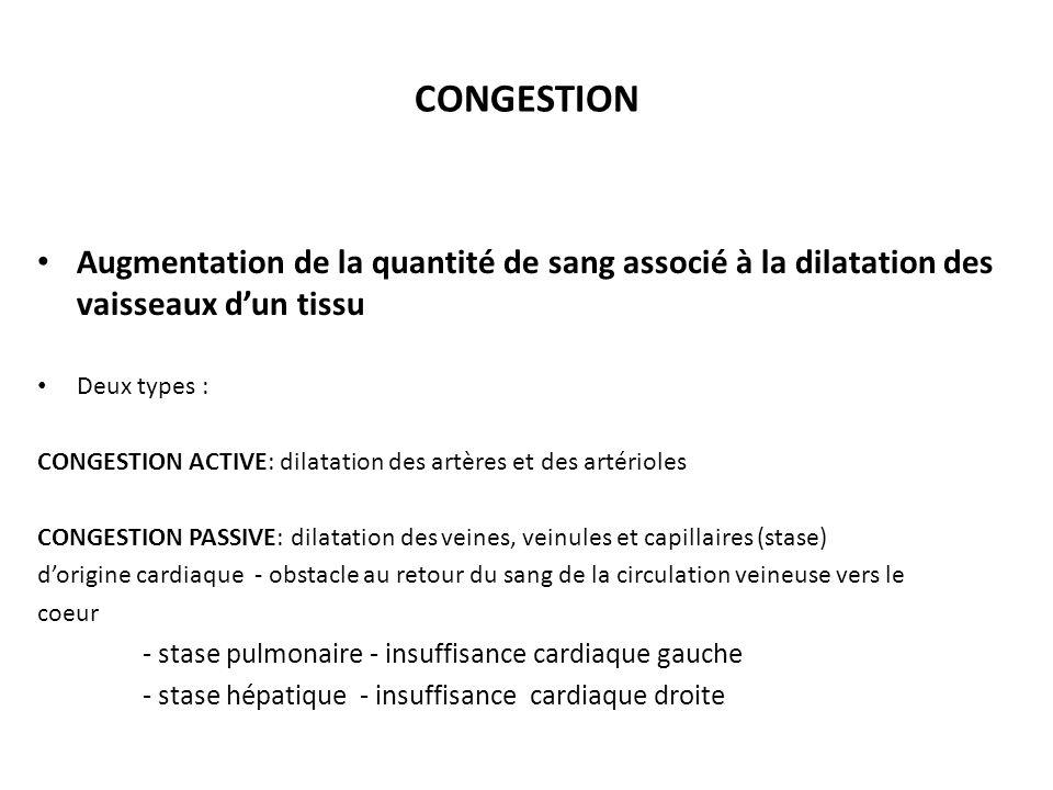 CONGESTION Augmentation de la quantité de sang associé à la dilatation des vaisseaux dun tissu Deux types : CONGESTION ACTIVE: dilatation des artères et des artérioles CONGESTION PASSIVE: dilatation des veines, veinules et capillaires (stase) dorigine cardiaque - obstacle au retour du sang de la circulation veineuse vers le coeur - stase pulmonaire - insuffisance cardiaque gauche - stase hépatique - insuffisance cardiaque droite