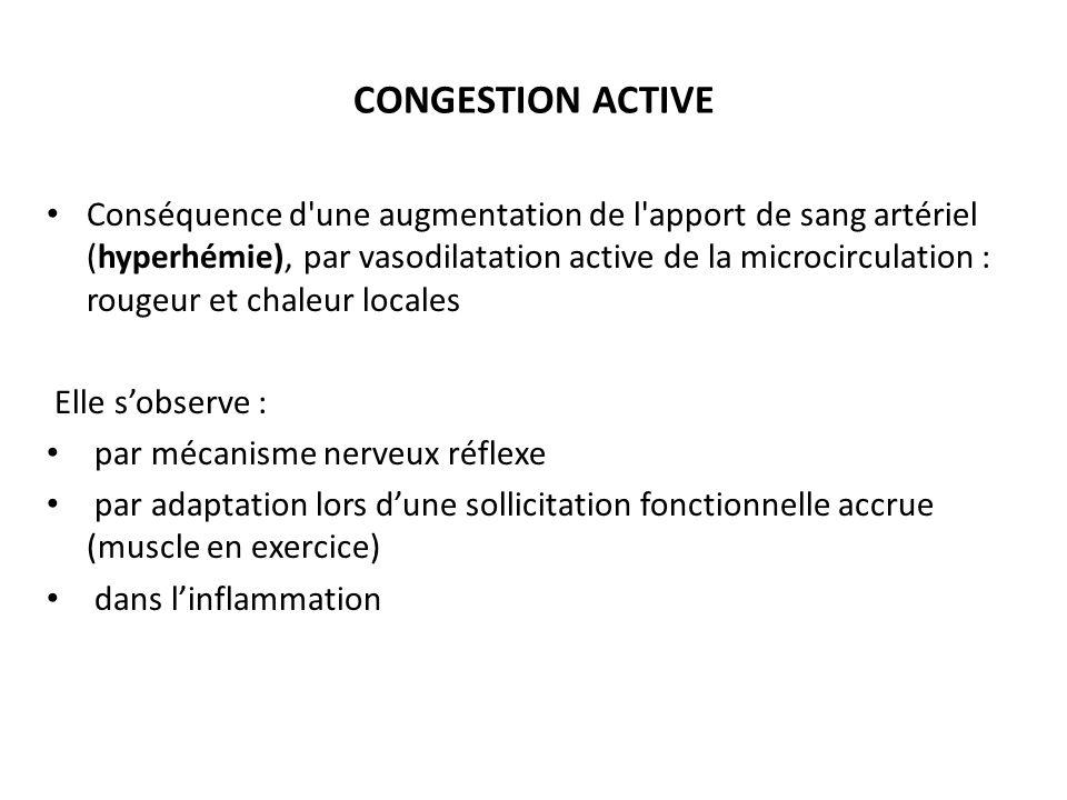 CONGESTION ACTIVE Conséquence d une augmentation de l apport de sang artériel (hyperhémie), par vasodilatation active de la microcirculation : rougeur et chaleur locales Elle sobserve : par mécanisme nerveux réflexe par adaptation lors dune sollicitation fonctionnelle accrue (muscle en exercice) dans linflammation