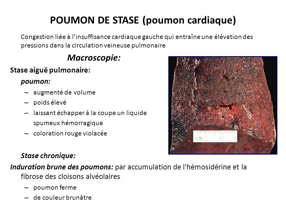 POUMON DE STASE CHRONIQUE Microscopie: parois alvéolaires épaissies par capillaires dilatés dans la lumière alvéolaire: – œdème alvéolaire (transsudat ) – hématies (par diapédèse érythrocytaire ou rupture des capillaires) – sidérophages (macrophage avec l hémosidérine) – cellules cardiaques Accumulation de l hémosidérine et la fibrose des parois macroscopiquement: induration brune des poumons