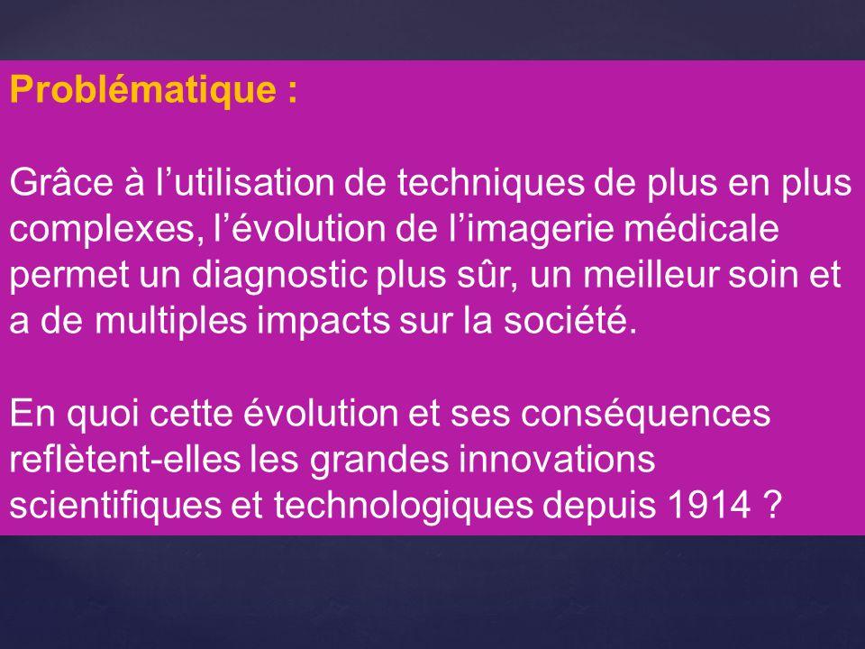 Notions : -Accélération et diffusion des découvertes -Progrès scientifique -« Mieux-être » -Consommation de masse -Financement de la science Vocabulaire : imagerie médicale, radiologie, innovation, technologie
